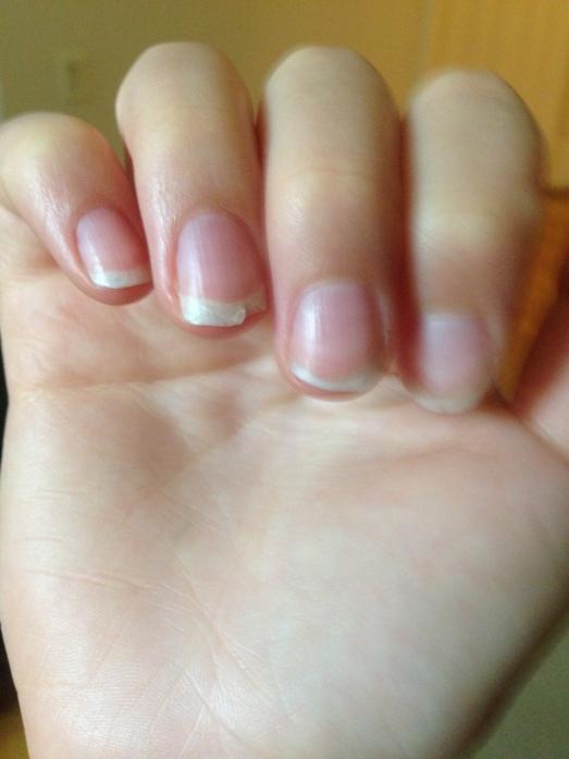 broken nails